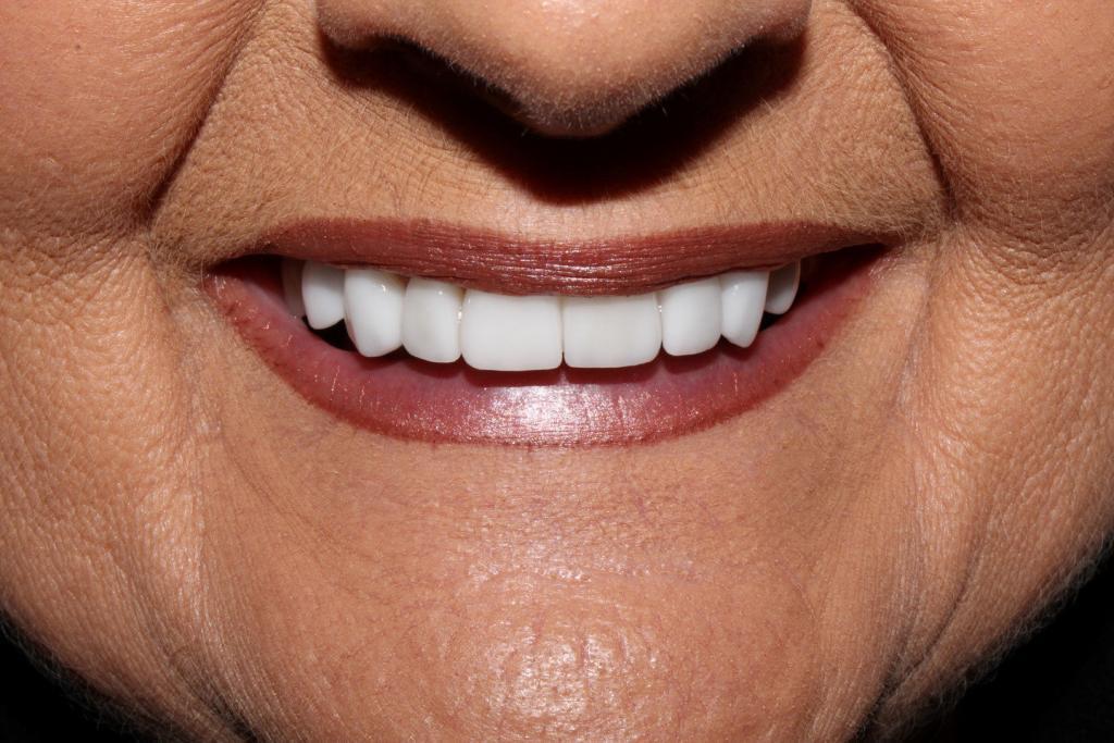 CDA Dentist Cosmetic Dentistry Treatment