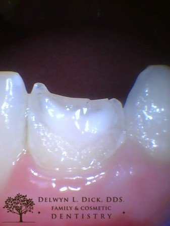 before Cda cosmetic dentistry after cracked tooth repair