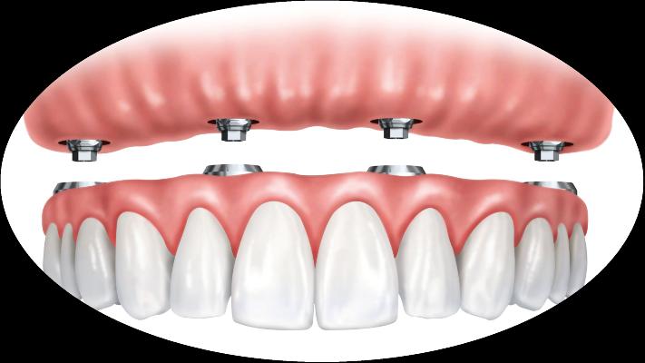 4 on 4 dentures