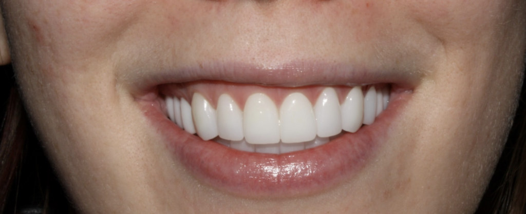 Cosmetic Dentist Before and after CDA Idaho