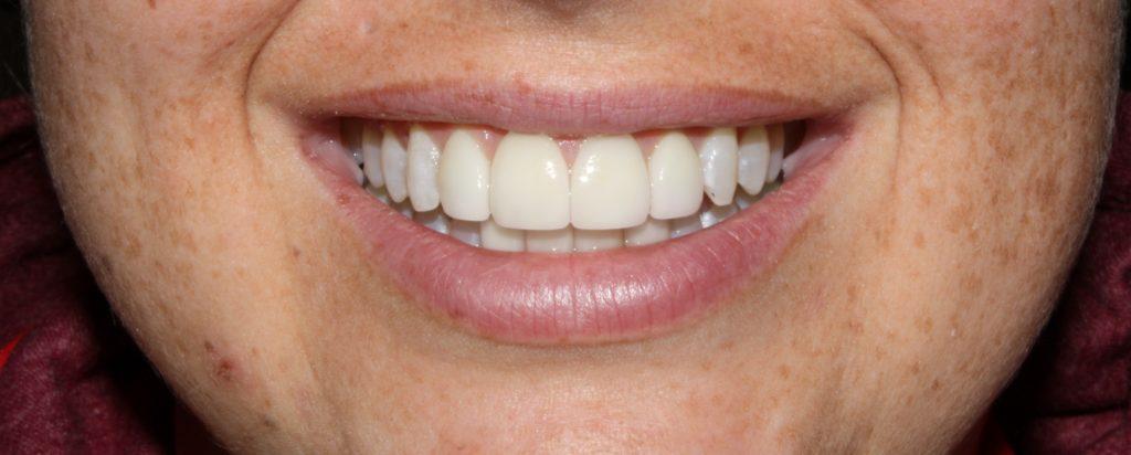 cosmetic dentistry cda