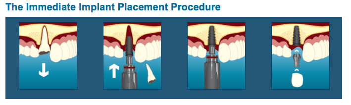 Implant Placement Procedures in Coeur d'Alene, ID