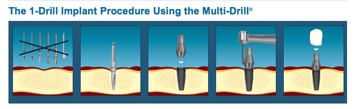 Drill Implant Procedures in Coeur d'Alene, ID