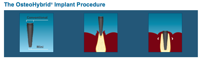 Osteohybrid Implant Procedure in Coeur d'Alene, ID